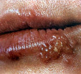 Treatment of herpes on the lips of folk remedies