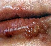 Лечение герпеса на губах народными средствами