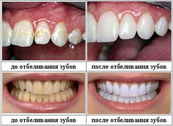 выгляд зубоў да і пасля адбельвання